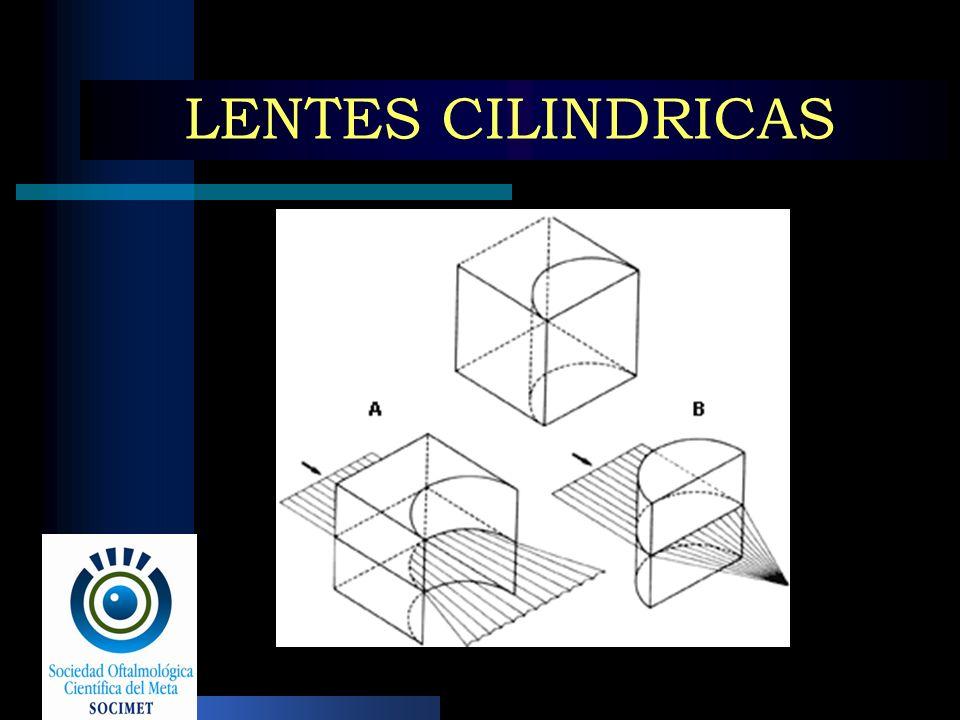 LENTES CILINDRICAS
