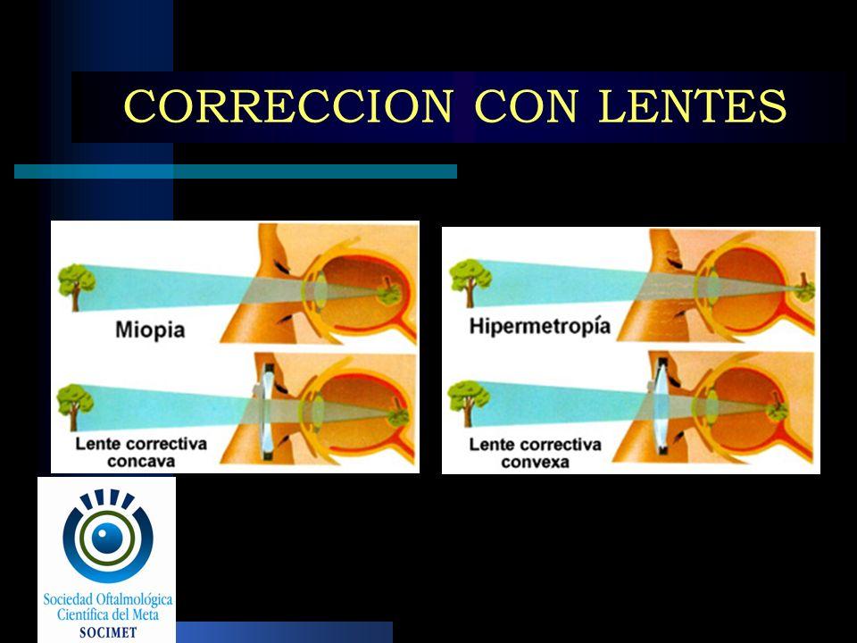 CORRECCION CON LENTES
