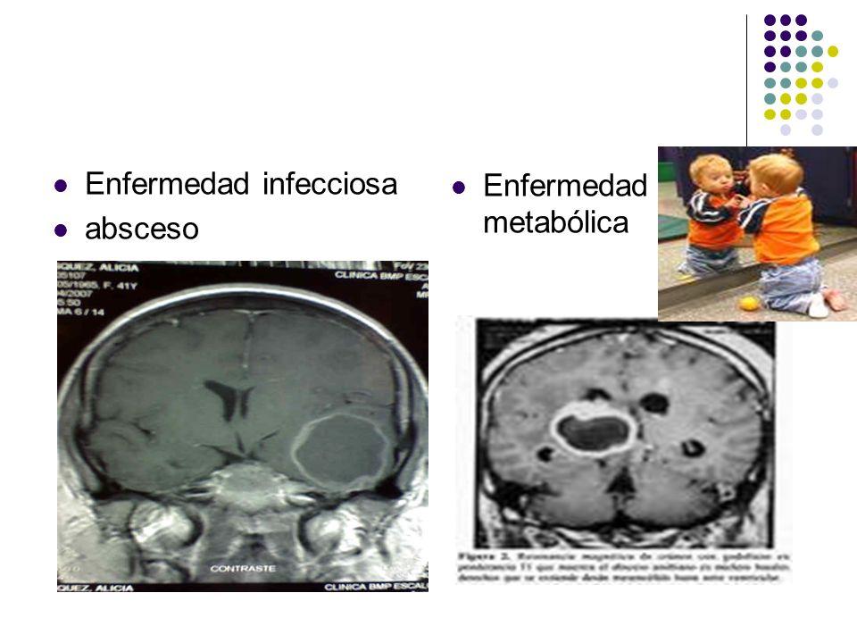 Enfermedad infecciosa absceso Enfermedad metabólica