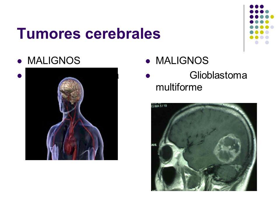 Tumores cerebrales MALIGNOS Glioblastoma multiforme MALIGNOS Glioblastoma multiforme
