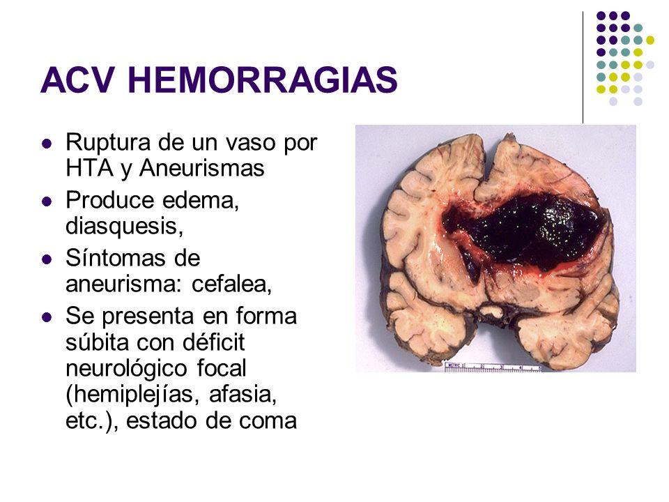 ACV HEMORRAGIAS Ruptura de un vaso por HTA y Aneurismas Produce edema, diasquesis, Síntomas de aneurisma: cefalea, Se presenta en forma súbita con déf