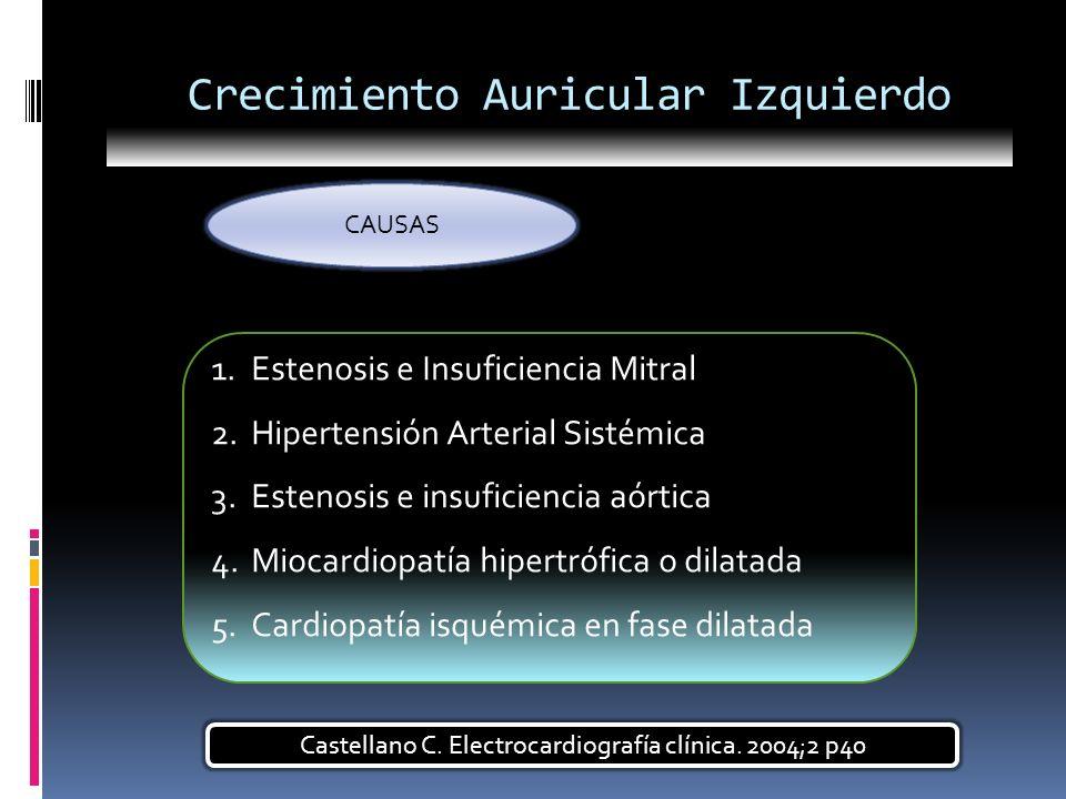 Crecimiento Auricular Izquierdo CAUSAS 1.Estenosis e Insuficiencia Mitral 2.Hipertensión Arterial Sistémica 3.Estenosis e insuficiencia aórtica 4.Mioc