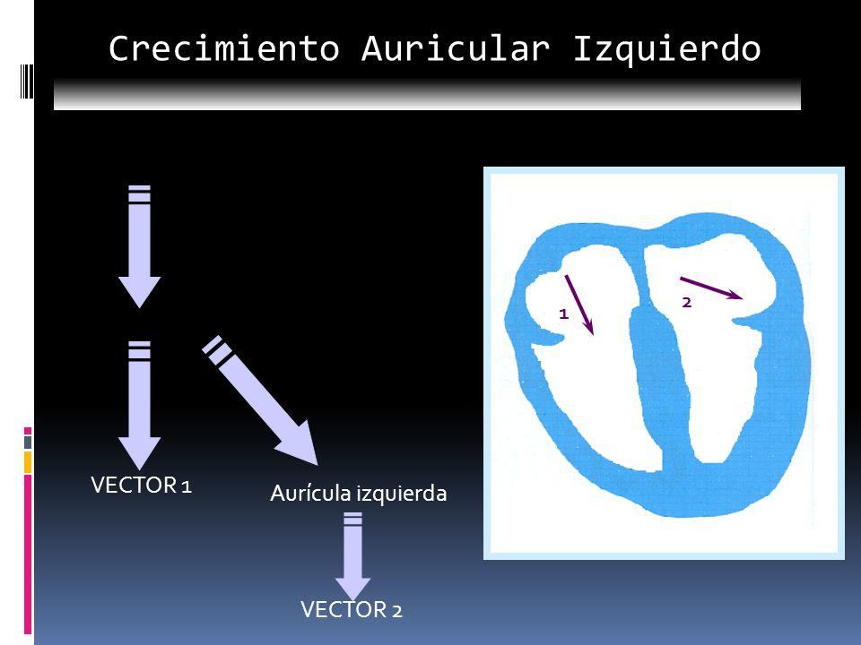 Nodo sinusal Aurícula derecha VECTOR 1 Aurícula izquierda VECTOR 2 1 2 Crecimiento Auricular Izquierdo