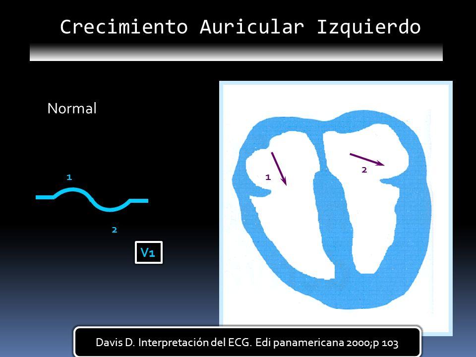 11 2 2 V1 Normall Davis D. Interpretación del ECG. Edi panamericana 2000;p 103 Crecimiento Auricular Izquierdo