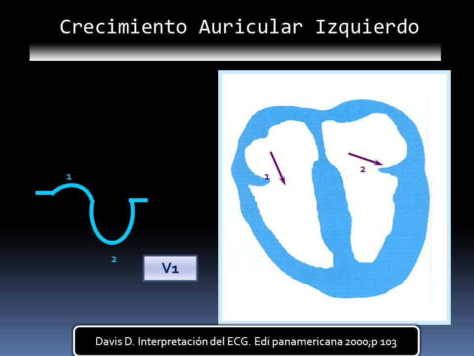 11 2 2 V1 Crecimiento Auricular Izquierdo Davis D. Interpretación del ECG. Edi panamericana 2000;p 103