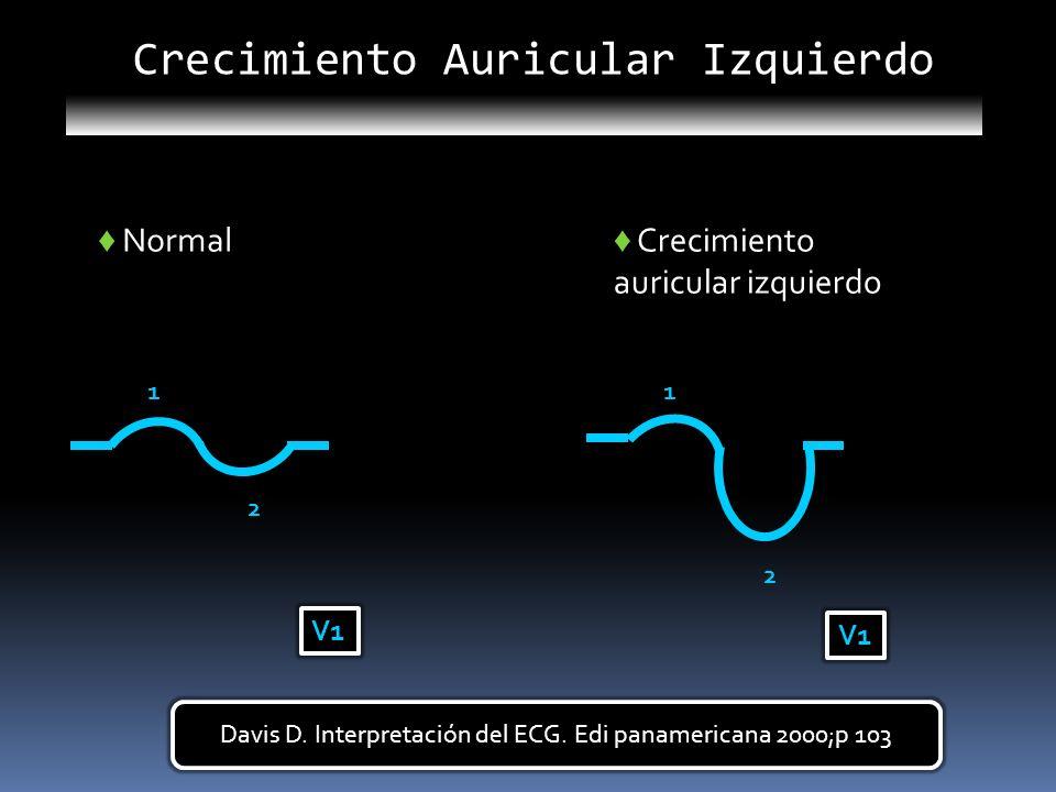 1 2 V1 Normal 1 2 V1 Crecimiento auricular izquierdo Crecimiento Auricular Izquierdo Davis D. Interpretación del ECG. Edi panamericana 2000;p 103