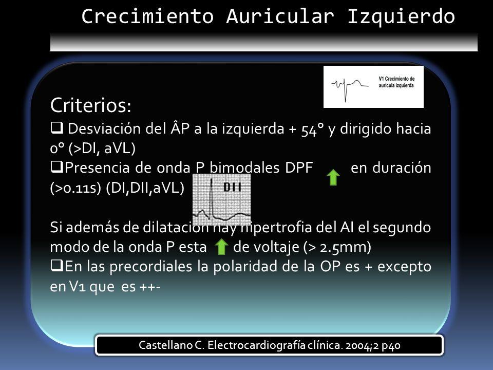 Criterios: Desviación del ÂP a la izquierda + 54° y dirigido hacia 0° (>DI, aVL) Presencia de onda P bimodales DPF en duración (>0.11s) (DI,DII,aVL) S