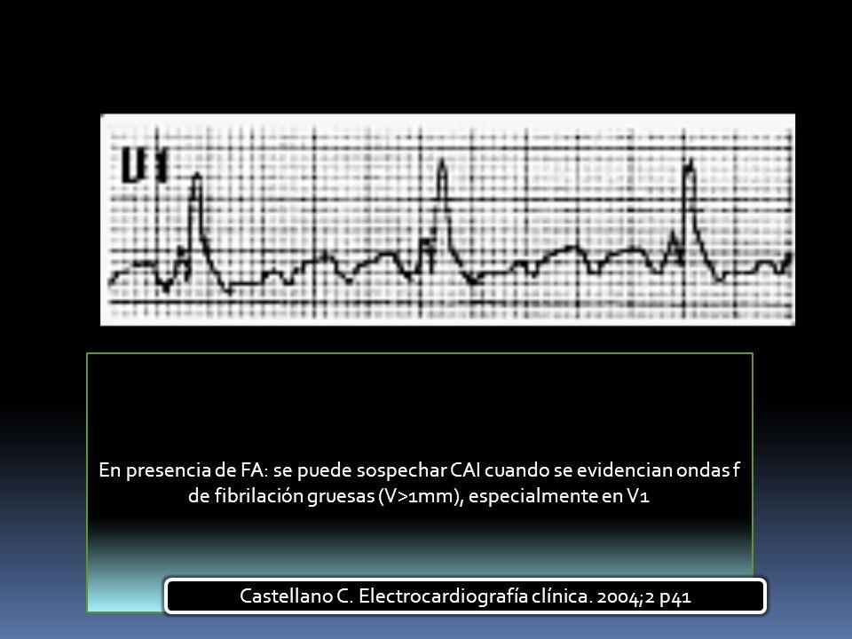 En presencia de FA: se puede sospechar CAI cuando se evidencian ondas f de fibrilación gruesas (V>1mm), especialmente en V1 Castellano C. Electrocardi