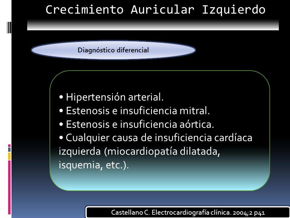 Hipertensión arterial. Estenosis e insuficiencia mitral. Estenosis e insuficiencia aórtica. Cualquier causa de insuficiencia cardíaca izquierda (mioca