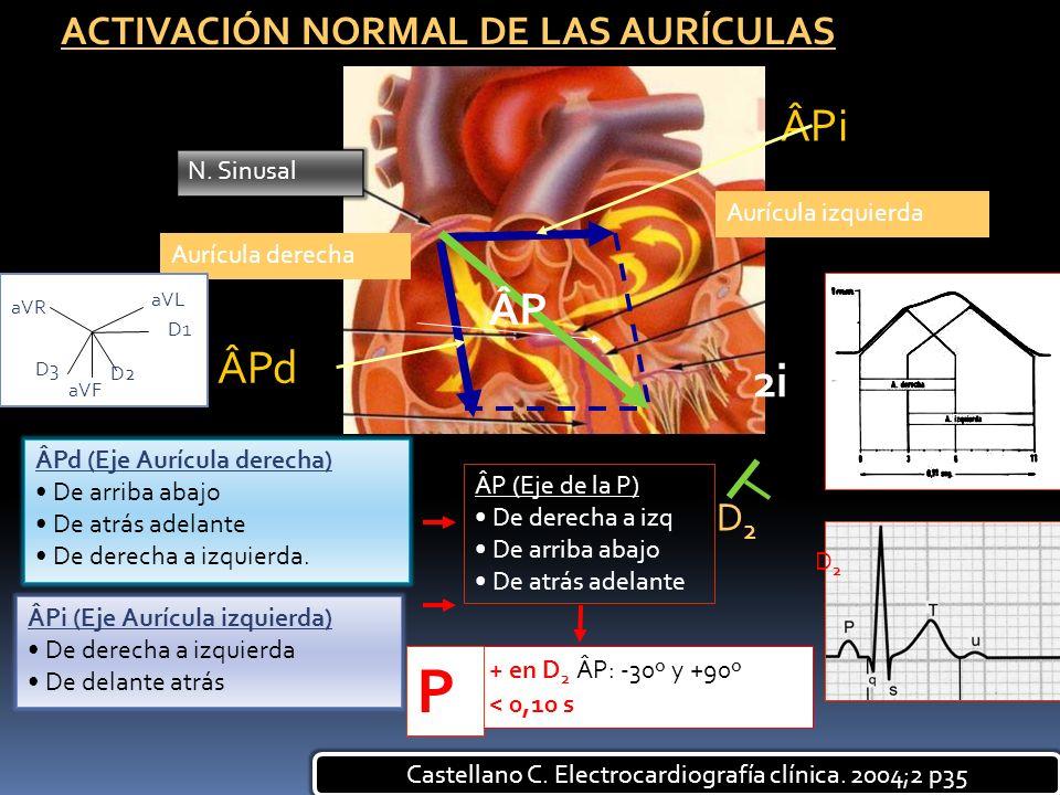 ACTIVACIÓN NORMAL DE LAS AURÍCULAS D2D2 ÂPd (Eje Aurícula derecha) De arriba abajo De atrás adelante De derecha a izquierda. ÂPi (Eje Aurícula izquier