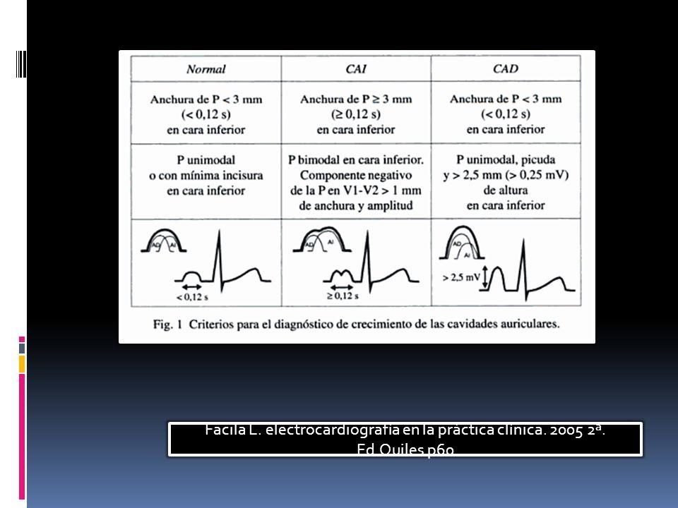Facila L. electrocardiografía en la práctica clínica. 2005 2ª. Ed.Quiles p60
