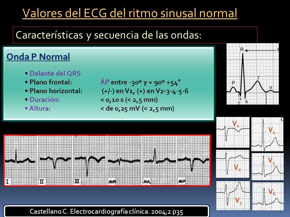 Características y secuencia de las ondas: Delante del QRS Plano frontal: ÂP entre -30º y + 90º +54° Plano horizontal: (+/-) en V1, (+) en V2-3-4-5-6 D