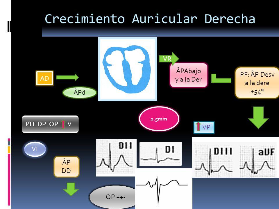 Crecimiento Auricular Derecha AD ÂPd ÂPAbajo y a la Der PF: ÂP Desv a la dere +54° VP 2.5mm VR PH: DP: OP V VI ÂP DD OP ++-