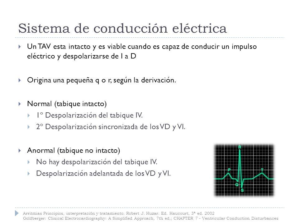 Tiempo de activación ventricular TAV: tiempo de activación ventricular.