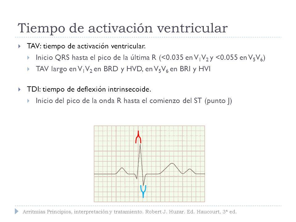 qR ancho con patron R en DI, aVL, V5 y V6 QRS ancho con patron rS en V1 y V2