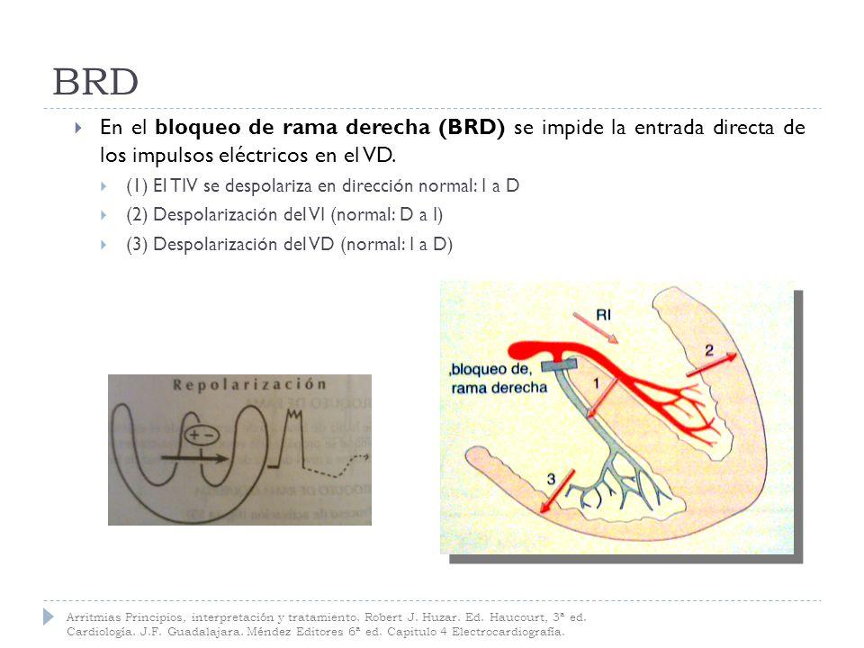 BRD Duración QRS: BRD completo: = o >0.12 seg BRD incompleto: 0.10 - 0.12 seg Eje QRS: -+90 º a +110 º (D/N) Segmento ST: deprimidos en V 1 -V 2 Ondas T: invertidas en V 1 -V 2 Complejos QRS: Derivaciones V 1 y V 2 Patrón trifásico rSR (M u orejas conejo): Onda r inicial pequeña Onda S profunda, empastada Onda R final (terminal) alta Arritmias Principios, interpretación y tratamiento.
