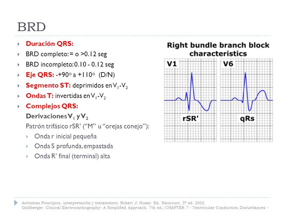 BRD Derivaciones I, aVL y V 5 -V 6 QRS ancho con un patrón clásico qRS: Onda q inicial pequeña Onda R alta Onda S final (terminal) profunda, empastada Arritmias Principios, interpretación y tratamiento.