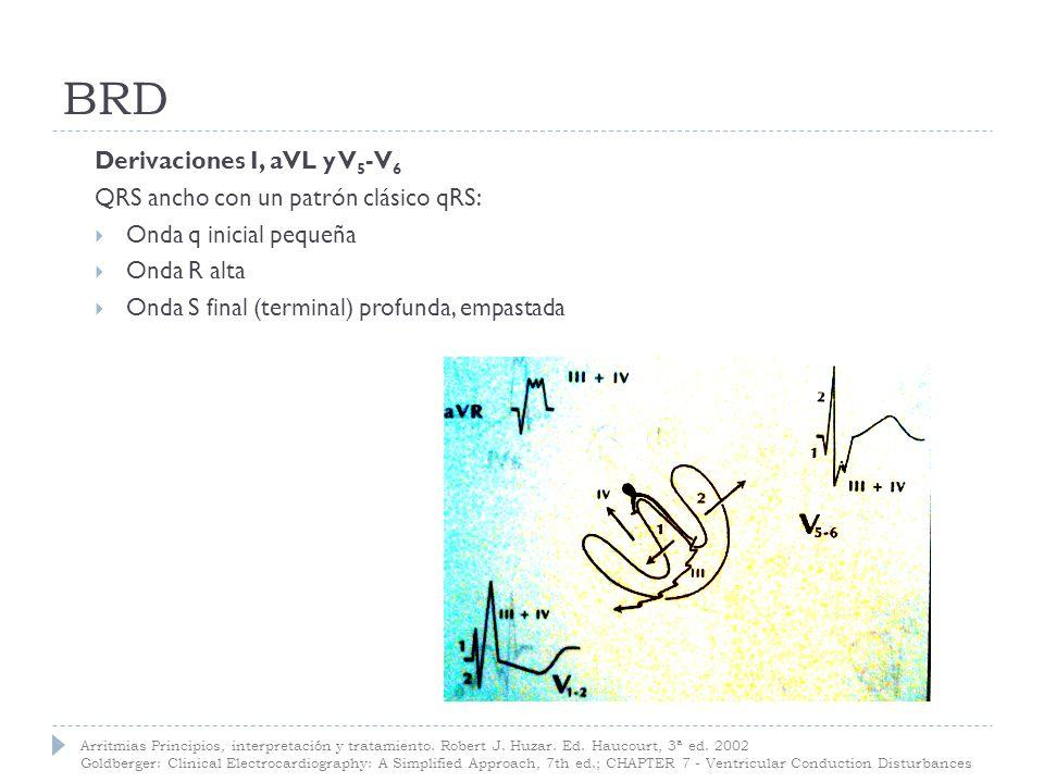 rSR (M) en V1 y V2 qRS en DI, aVL, V5 y V6 Eje + 90 º a + 110 º
