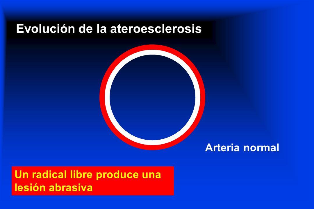 Evolución de la ateroesclerosis Arteria normal Un radical libre produce una lesión abrasiva
