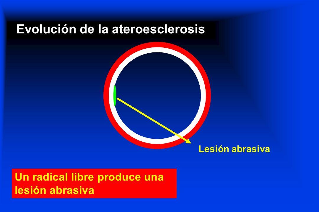 Evolución de la ateroesclerosis Lesión abrasiva Un radical libre produce una lesión abrasiva