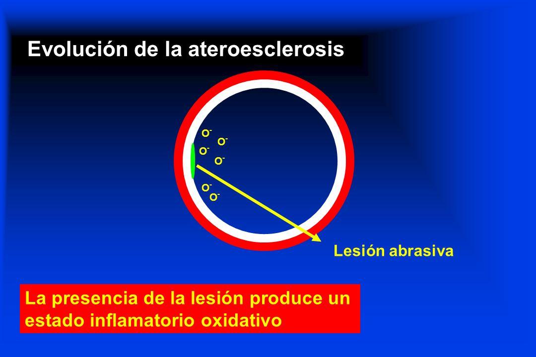Evolución de la ateroesclerosis Lesión abrasiva La presencia de la lesión produce un estado inflamatorio oxidativo O-O- O-O- O-O- O-O- O-O- O-O-