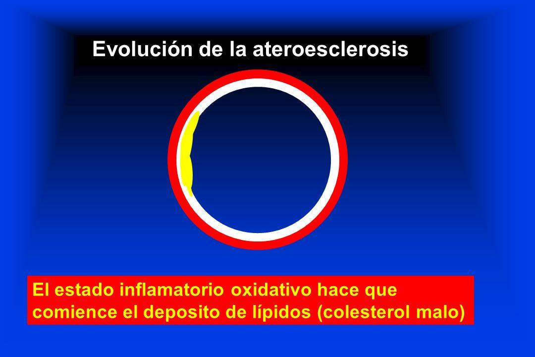 Evolución de la ateroesclerosis El estado inflamatorio oxidativo hace que comience el deposito de lípidos (colesterol malo)