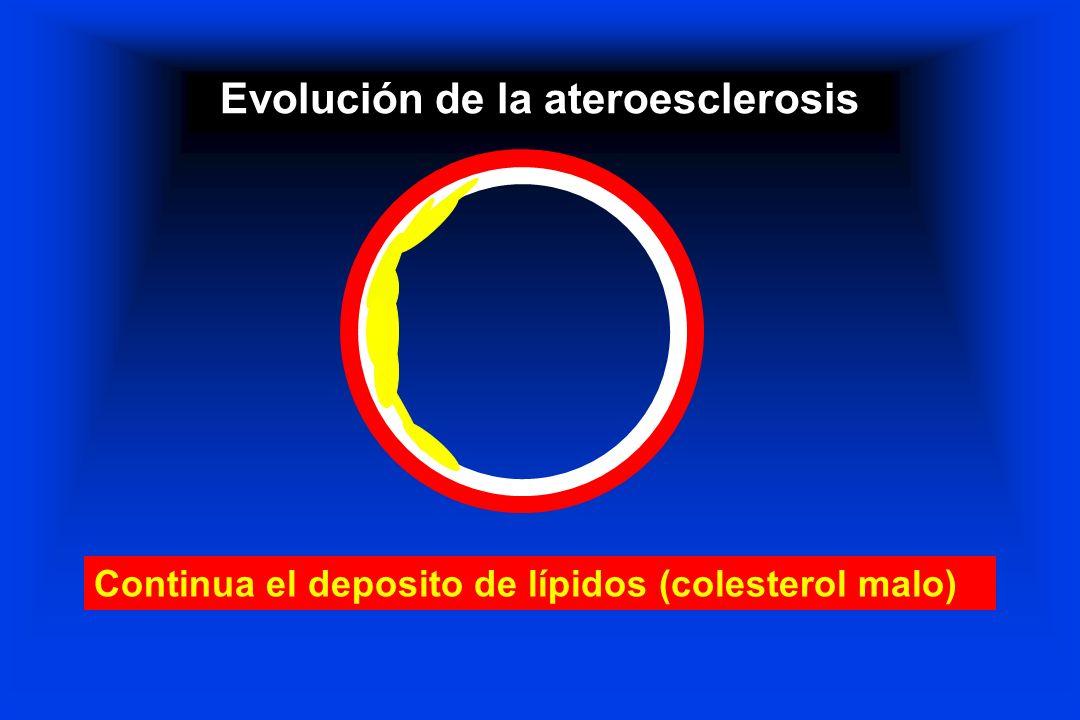 Evolución de la ateroesclerosis Continua el deposito de lípidos (colesterol malo)