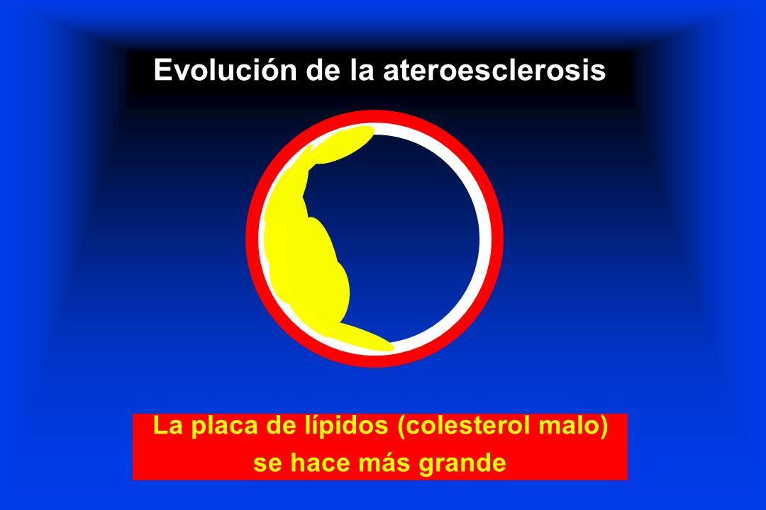 Evolución de la ateroesclerosis La placa de lípidos (colesterol malo) se hace más grande