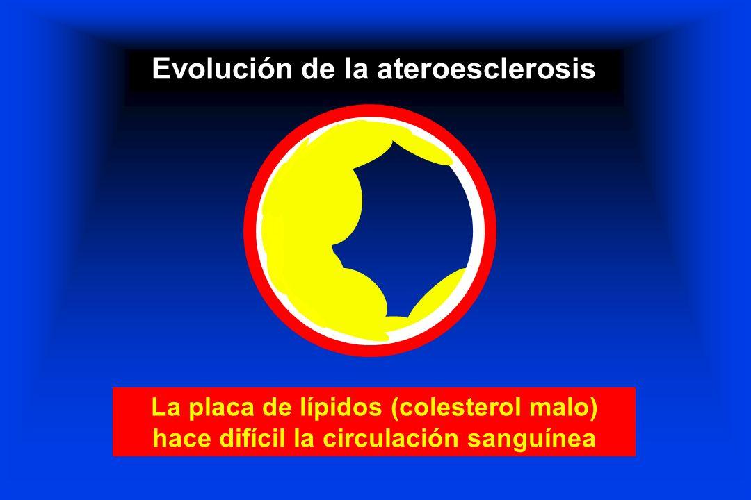 Evolución de la ateroesclerosis La placa de lípidos (colesterol malo) hace difícil la circulación sanguínea
