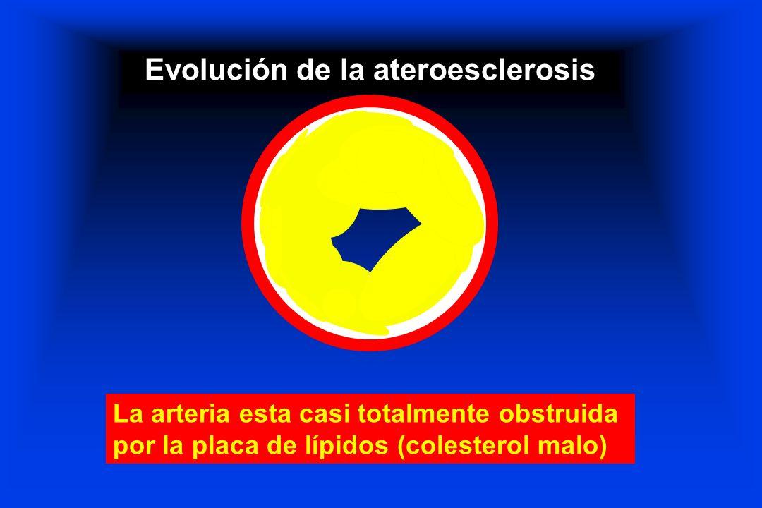 Evolución de la ateroesclerosis La arteria esta casi totalmente obstruida por la placa de lípidos (colesterol malo)