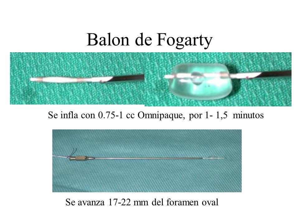 Balon de Fogarty Se avanza 17-22 mm del foramen oval Se infla con 0.75-1 cc Omnipaque, por 1- 1,5 minutos