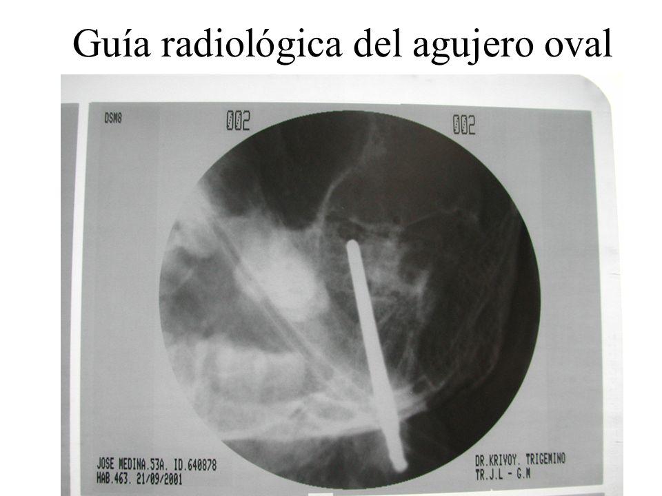 Guía radiológica del agujero oval