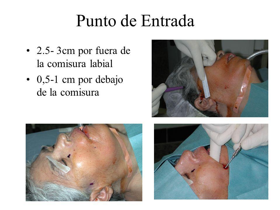 Punto de Entrada 2.5- 3cm por fuera de la comisura labial 0,5-1 cm por debajo de la comisura