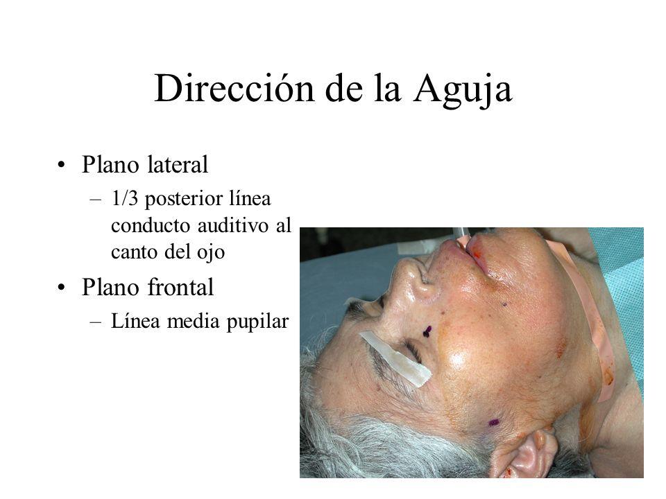 Dirección de la Aguja Plano lateral –1/3 posterior línea conducto auditivo al canto del ojo Plano frontal –Línea media pupilar