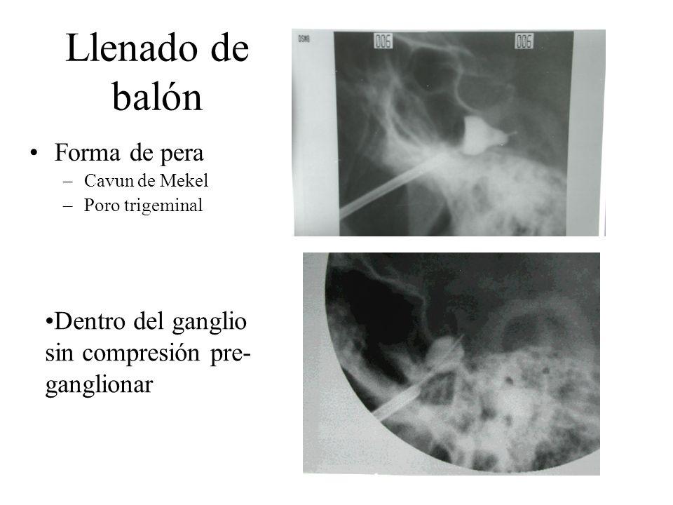 Llenado de balón Forma de pera –Cavun de Mekel –Poro trigeminal Dentro del ganglio sin compresión pre- ganglionar