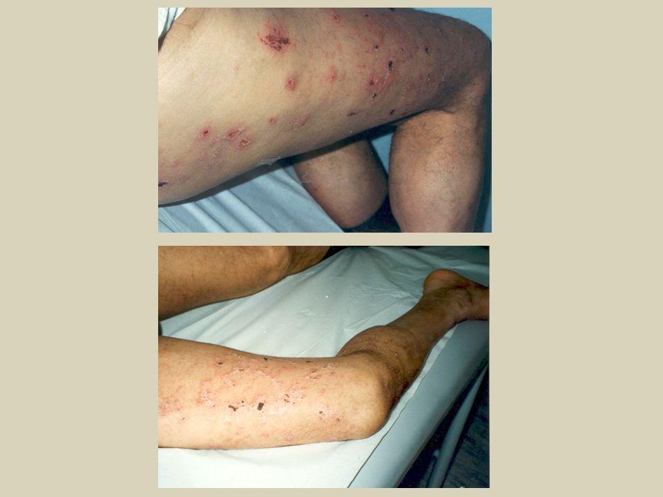 Epidemiología Incidencia de Herpes zoster en HIV (+) La incidencia es de 29,4 cada 1.000 personas/año vs 2 cada 1.000 personas/año; en HIV (-) controles.
