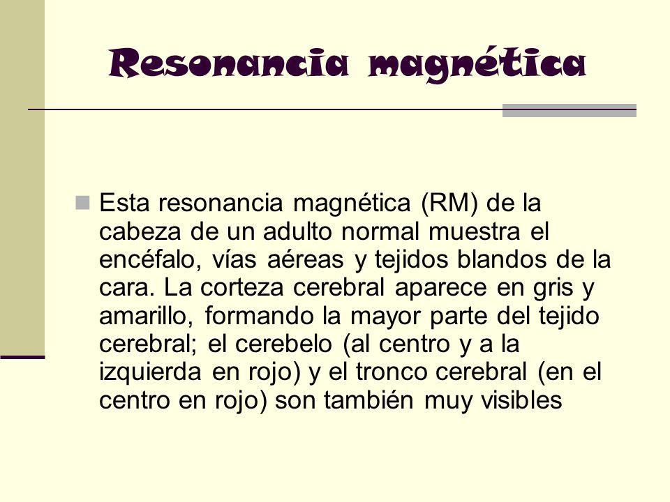 Resonancia magnética Esta resonancia magnética (RM) de la cabeza de un adulto normal muestra el encéfalo, vías aéreas y tejidos blandos de la cara. La
