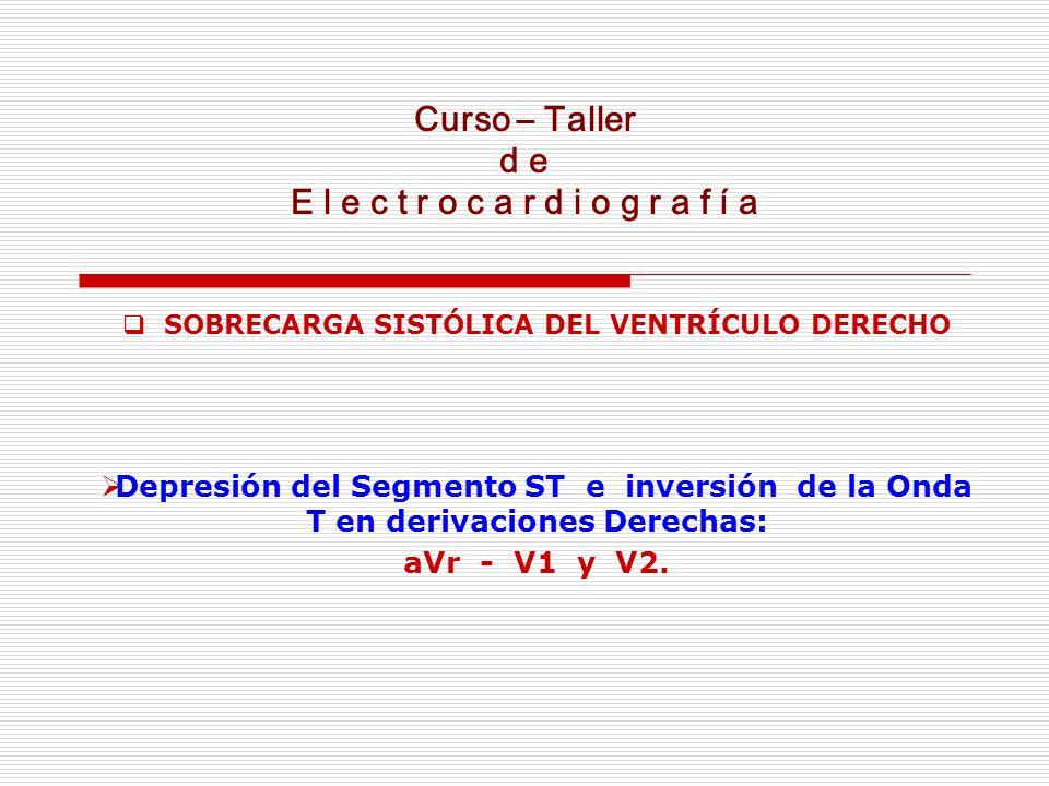 Curso – Taller d e E l e c t r o c a r d i o g r a f í a SOBRECARGA SISTÓLICA DEL VENTRÍCULO DERECHO Depresión del Segmento ST e inversión de la Onda
