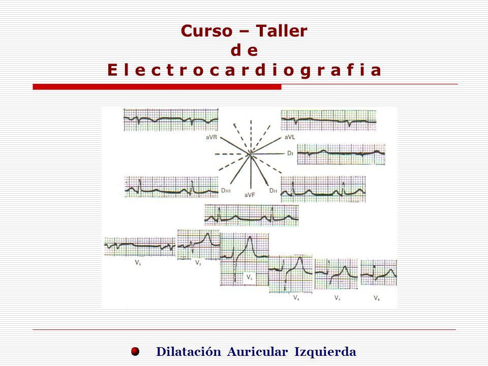 Curso – Taller d e E l e c t r o c a r d i o g r a f i a E j e r c i c i o s Dilatación Auricular Izquierda