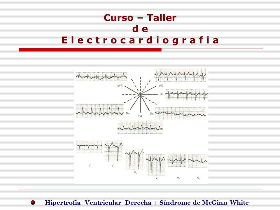 Curso – Taller d e E l e c t r o c a r d i o g r a f i a E j e r c i c i o s Hipertrofia Ventricular Derecha + Síndrome de McGinn-White