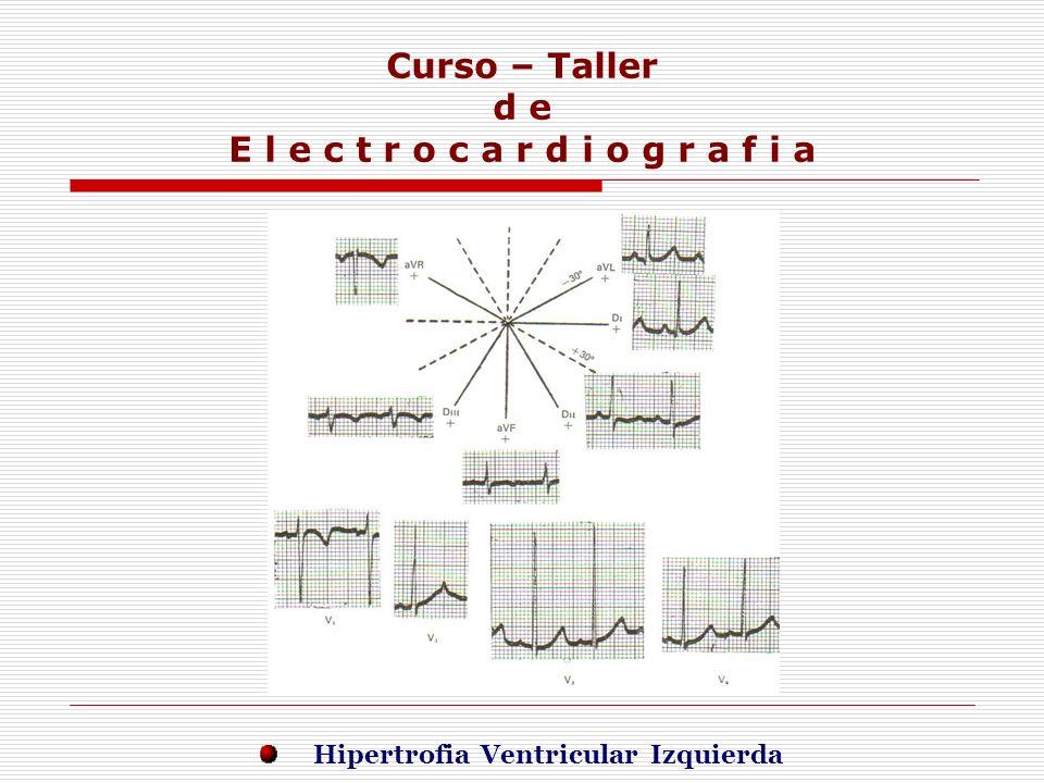 Curso – Taller d e E l e c t r o c a r d i o g r a f i a E j e r c i c i o s Hipertrofia Ventricular Izquierda