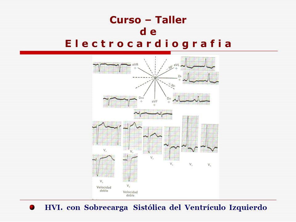 Curso – Taller d e E l e c t r o c a r d i o g r a f i a E j e r c i c i o s HVI. con Sobrecarga Sistólica del Ventrículo Izquierdo