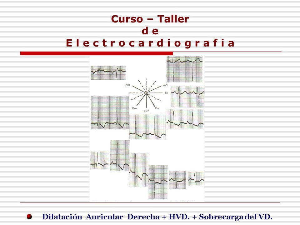 Curso – Taller d e E l e c t r o c a r d i o g r a f i a E j e r c i c i o s Dilatación Auricular Derecha + HVD. + Sobrecarga del VD.