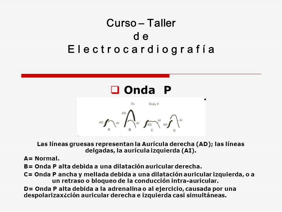Curso – Taller d e E l e c t r o c a r d i o g r a f í a Onda P Las líneas gruesas representan la Aurícula derecha (AD); las líneas delgadas, la auríc