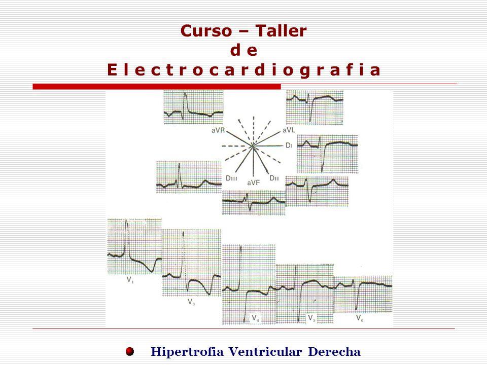 Curso – Taller d e E l e c t r o c a r d i o g r a f i a E j e r c i c i o s Hipertrofia Ventricular Derecha