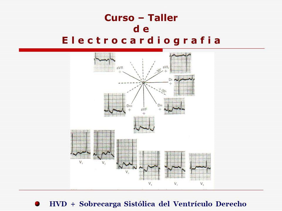 Curso – Taller d e E l e c t r o c a r d i o g r a f i a E j e r c i c i o s HVD + Sobrecarga Sistólica del Ventrículo Derecho