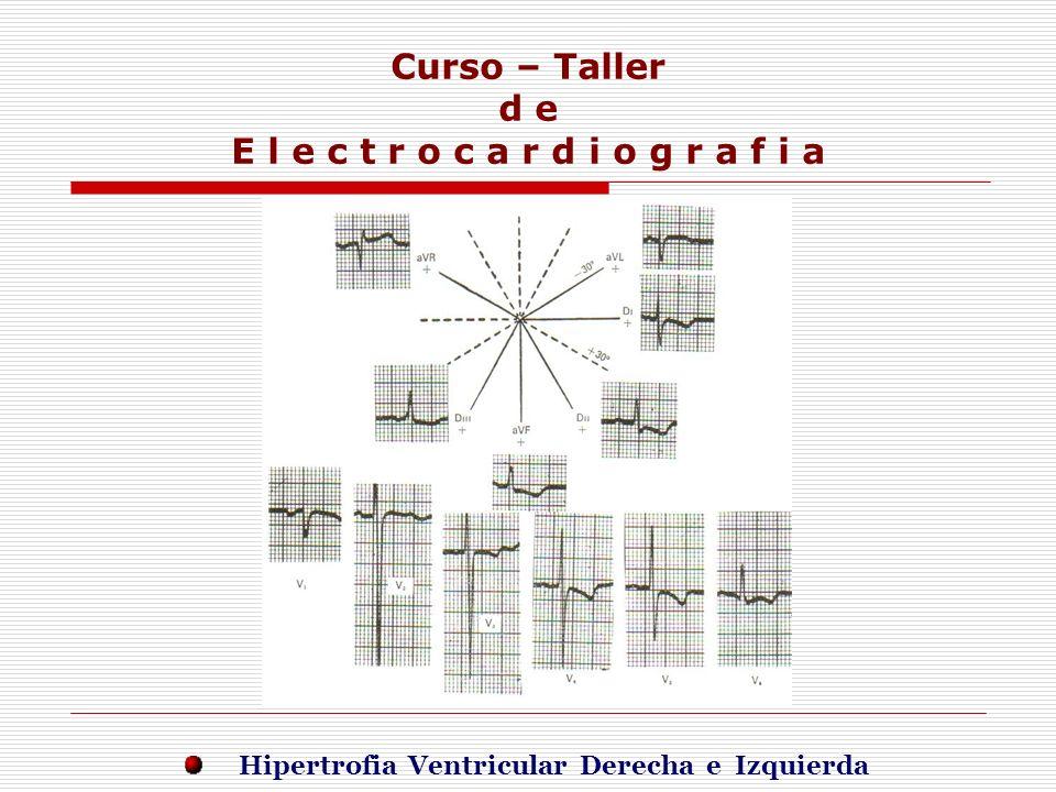 Curso – Taller d e E l e c t r o c a r d i o g r a f i a E j e r c i c i o s Hipertrofia Ventricular Derecha e Izquierda