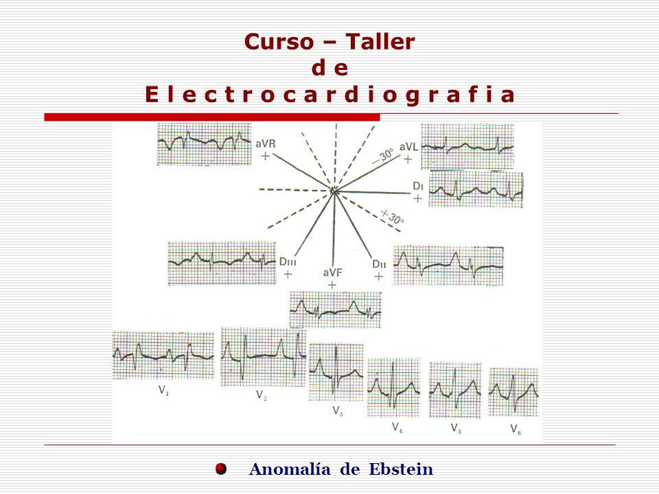 Curso – Taller d e E l e c t r o c a r d i o g r a f i a E j e r c i c i o s Anomalía de Ebstein