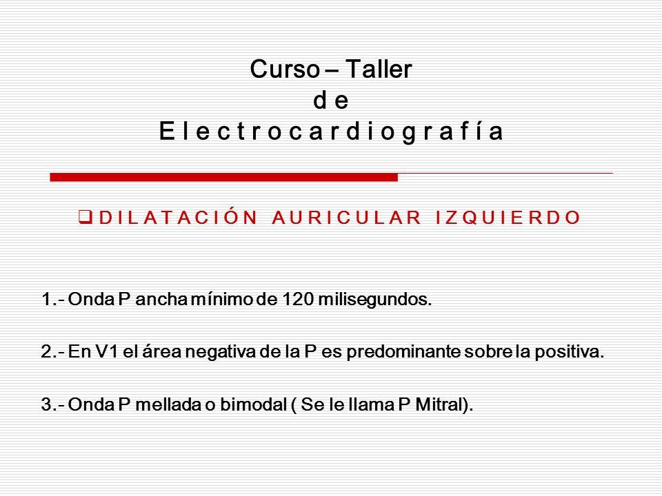 Curso – Taller d e E l e c t r o c a r d i o g r a f í a D I L A T A C I Ó N A U R I C U L A R I Z Q U I E R D O 1.- Onda P ancha mínimo de 120 milise