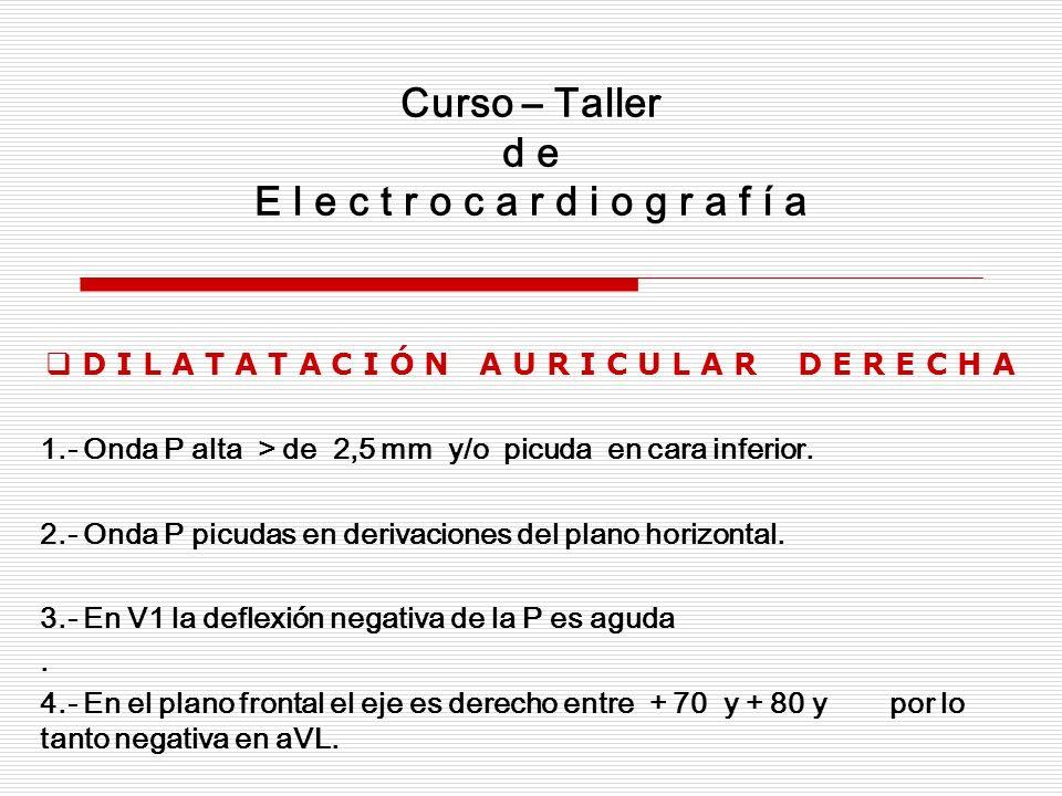 Curso – Taller de E L e c t r o c a r d i o g r a f í a Dilatación Bi – Auricular En la dilatación bi – auricular hay aumento de fuerzas vectoriales de ambas aurículas, por lo tanto se presenta una combinación de los signos descritos para la dilatación de aurícula derecha y de aurícula izquierda.